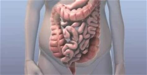 Can Caffeine Cause Blood In Stool by Constipation Causes Symptoms Treatment Prevention