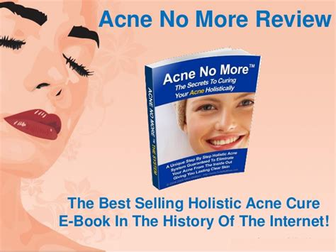 Acne No More Review by Acne No More Review Getting Rid Of Acne Scars