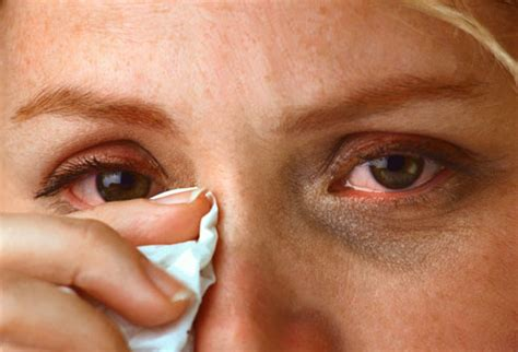 itchy treatment itchy eyelids causes symptoms treatment swollen diseases pictures