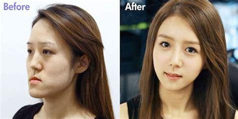 diejek jelek hasil operasi plastik wanita ini mirip yoona snsd vemale