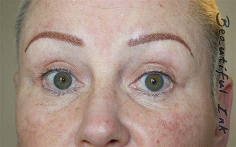 tattoo eyebrows manchester tattooed eyebrows dry tattooing scar stretch mark