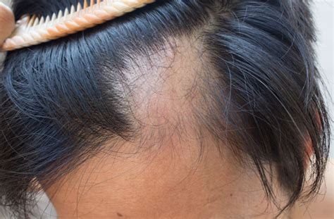 female pattern hair loss stress what is alopecia everything you need to know goodtoknow