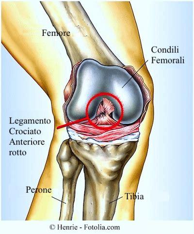 dolore ginocchio sinistro interno rottura dei legamenti crociati ginocchio e menisco
