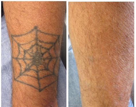 tattoo removal ct laser removal before and after connecticut skin