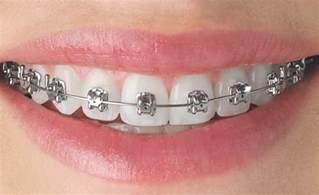 braces colors for teeth silver braces braces colors braces colors