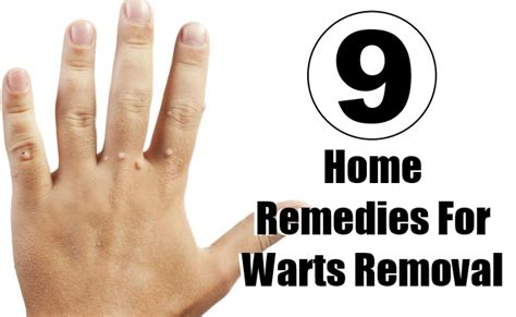 9 top home remedies for warts removal style presso