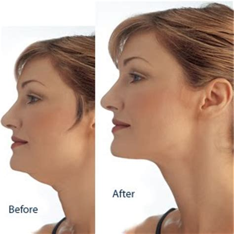 women fat necks how to lose your double chin premium health and fitness tips