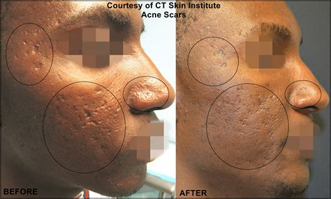 acne scar treatment connecticut skin institute