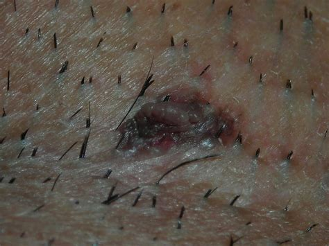 dense pubic hair is this a mole or wart i m concerned genital area pics