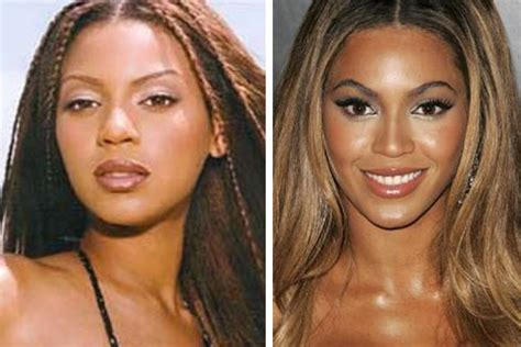 has beyonce had plastic surgery check out the pics