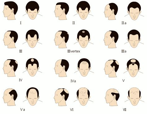 hairline pattern korea hair transplant center hair loss in men and