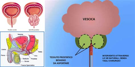 alimentazione prostata ingrossata prostata ingrossata cause sintomi e cure