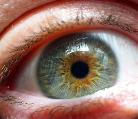eye injury injuries