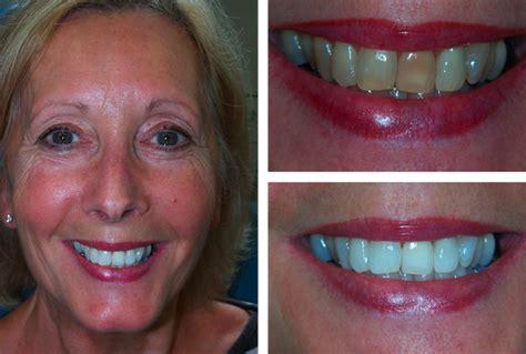 teeth whitening  chichester dentists waterlooville zoom