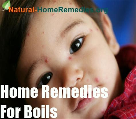 boils home remedies boils treatment remedies