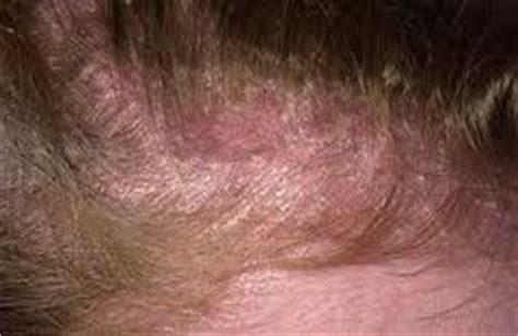 Salep Locoid does seborrheic dermatitis cause hair loss