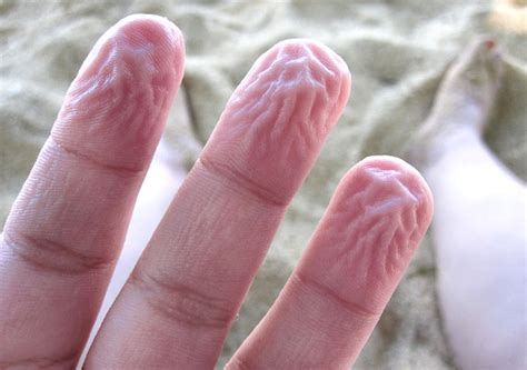 why does skin wrinkle in the bathtub why fingers and toes get pruney wrinkled when wet