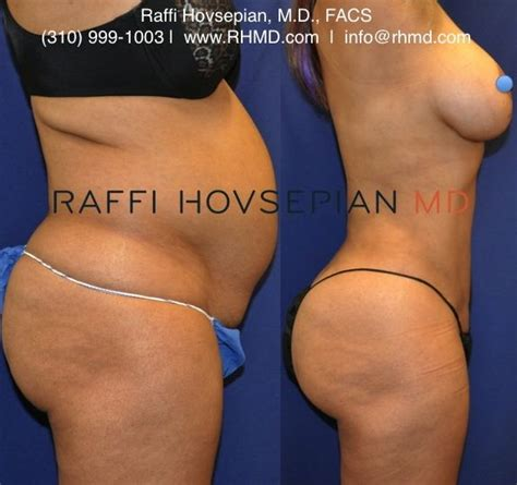 breast lift before and after photos plastic surgery 26 best dr raffi hovsepian buttock augmentation images on