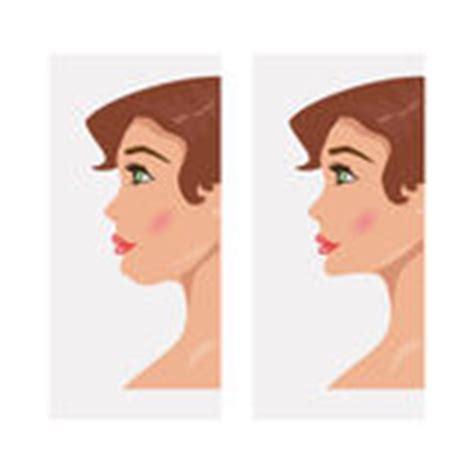 lada a spruzzo doppio mento prima e dopo il trattamento illustrazione