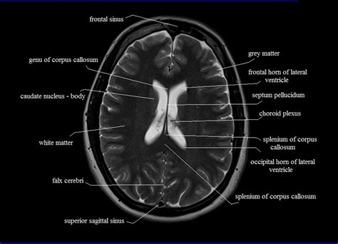 mri cross sectional anatomy brain brain cross sectional anatomy ct pictures to pin on