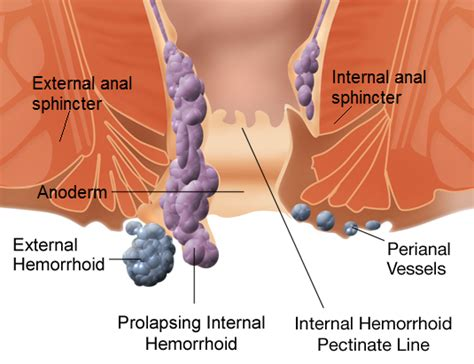 external hemorrhoid pain hemorrhoid wikiwand