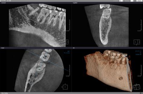 Cabinet Radiologie Villeneuve D Ascq by Le Cone Beam Scanner Dentaire Villeneuve D Ascq 59650