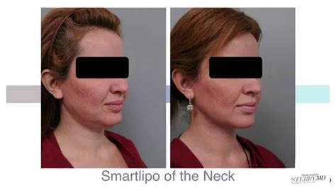 double chin tuck sew double chin liposuction with smartlipo dr sterry