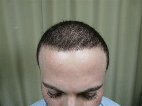 big bodies buzz cut ugraft fue hair transplant using 5000 grafts
