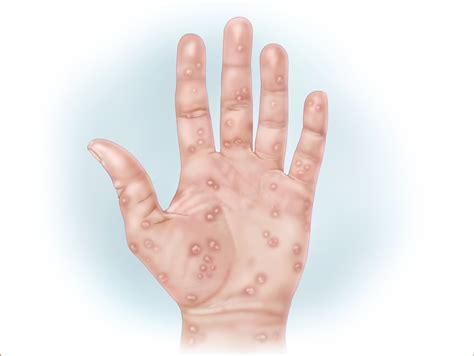 Syphilis Rash On Hands   secondary syphilis causes symptoms diagnosis