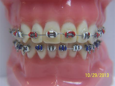 cool colors for braces braces colors ideas www imgkid the image kid has it