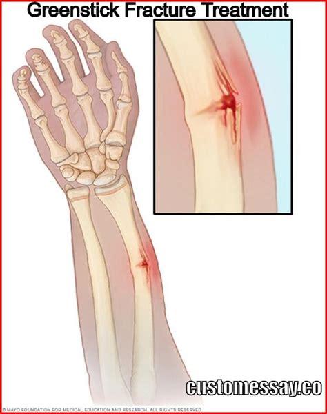Greenstick Fracture Treatment Fractured Wrist Treatment