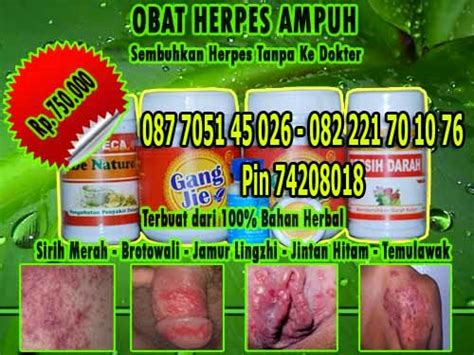 Denature Obat Herpes obat herpes herbal uh