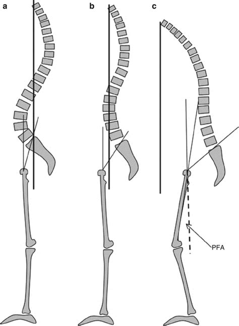 C7 Plumb Line by The Importance Of Sagittal Balance For The Treatment Of Lumbar Degenerative Disk Disease