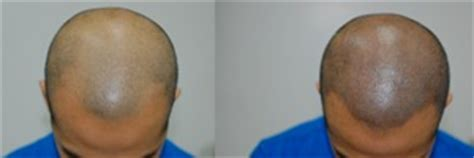 scalp micropigmentation in pakistan can temporary smp be removed with laser treatment