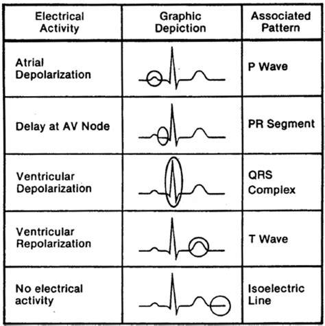 ecg pattern meaning cardiac rhythm interpretation