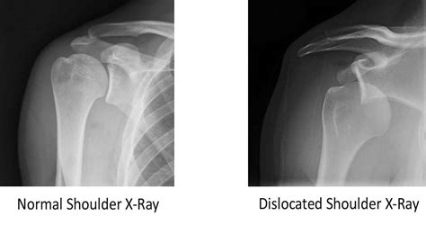 dislocated shoulder pin anterior hip dislocation x on