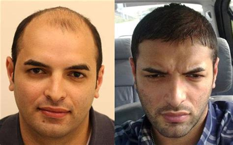americas best hair transplant best celebrity hair transplants pictures to pin on