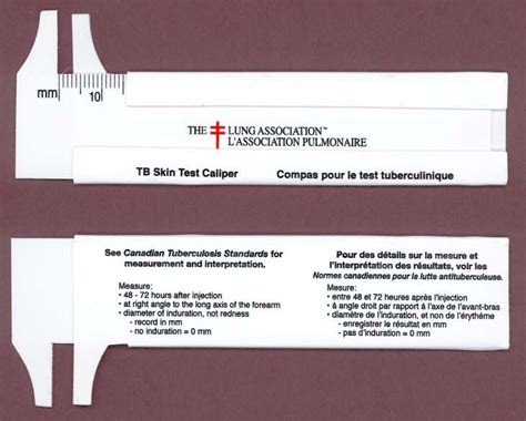printable tb ruler for measurement of indurations of tb skin tests
