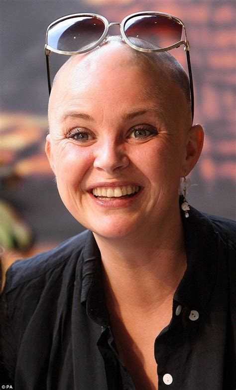 Is Bald She by Gail Porter Might Use A Dating Agency To Meet