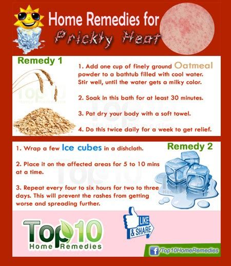 home remedies for prickly heat top 10 home remedies