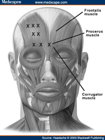 botox injection for migraines diagram how does botox work quora