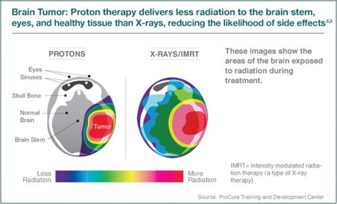 Proton Radiation Therapy For Cancer by Advanced Proton Therapy A Safer Cancer Treatment For