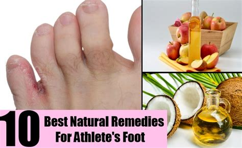 athletes foot shoe treatment 10 best remedies for athlete s foot home so