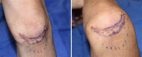 explore plastic surgery dr barry eppley arm lift elbow lift archives