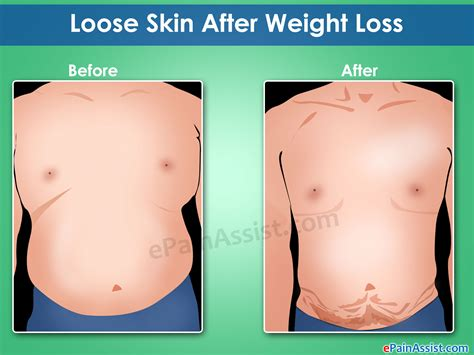 How To Tighten Skin After Weight Loss by Skin After Weight Loss Non Surgical Surgical Ways