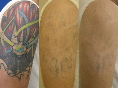 tattoo removal va 28 removal dc area removal center for