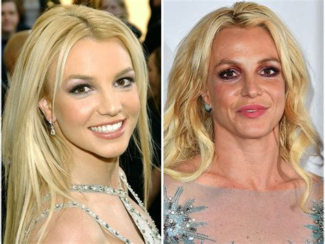 Britneys To Toe Plastic Surgery by Plastic Surgery An Expert Breaks