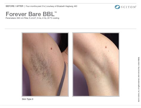 brazilian laser hair removal pictures average cost of laser hair removal om hair