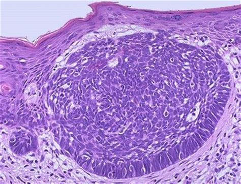 Basal Cell Carcinoma Skin Pathology Outlines by Pathology Outlines Basal Cell Carcinoma Bcc