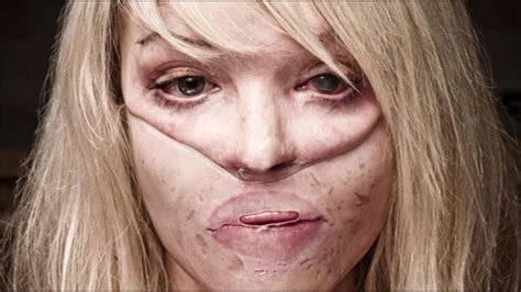 what are the scars from on katies face vanderpump rules boosheet today katie piper s story an acid attack victim